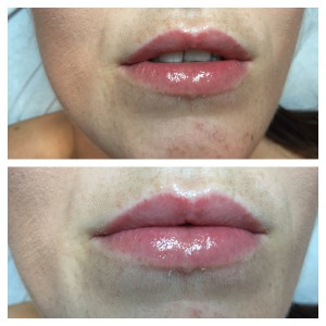 lip enhancement and semi-permanent make up 3