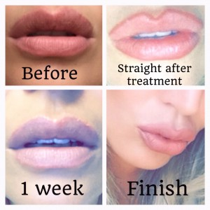 lip enhancement and permanent makeup