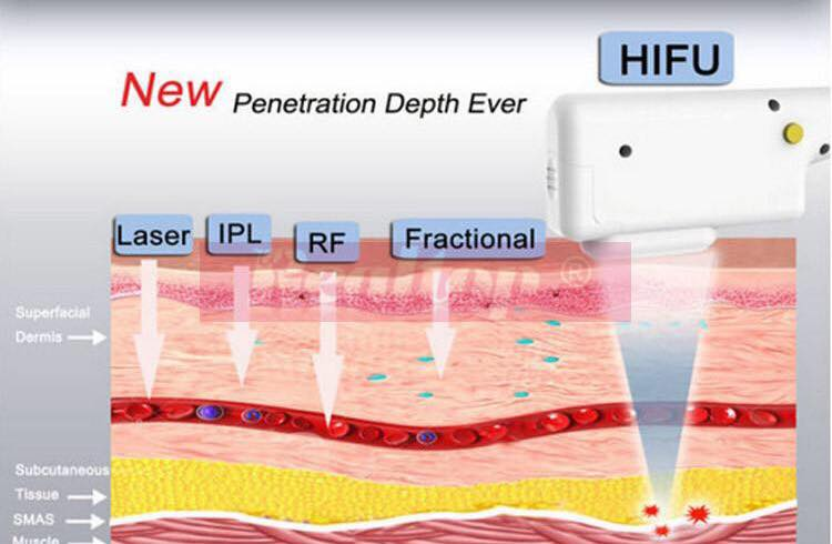 Hifu picture _skin layers penetration