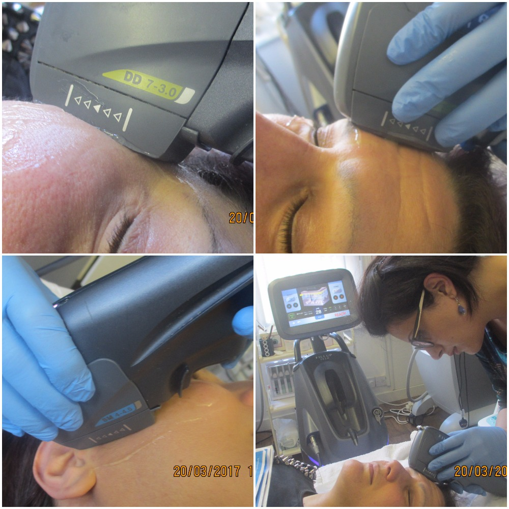 hifu-face-lift-eye-lift-frown-lines-neck-lift-focused -ultrasound-