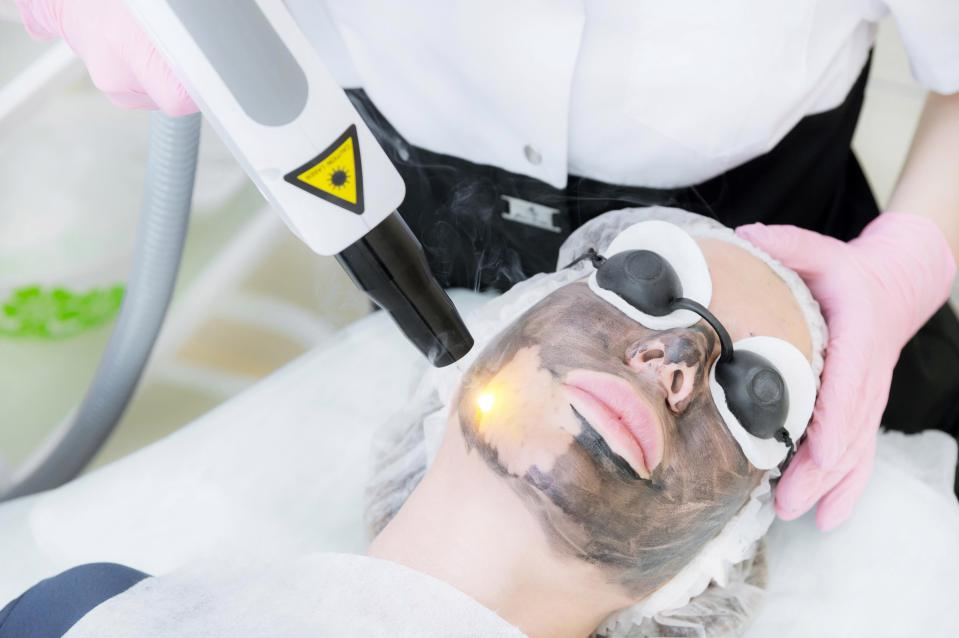 carbon facial, hollywood facila, carbon  laser peeling
